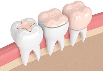 Quando il dente è cariato: otturazione o intarsio